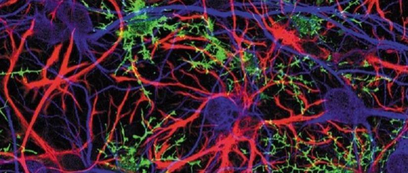 Image of brain neurons and synapses