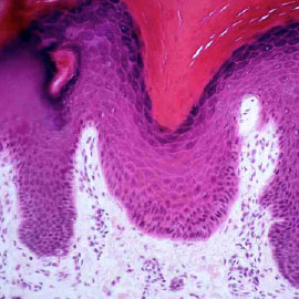 Histological slide